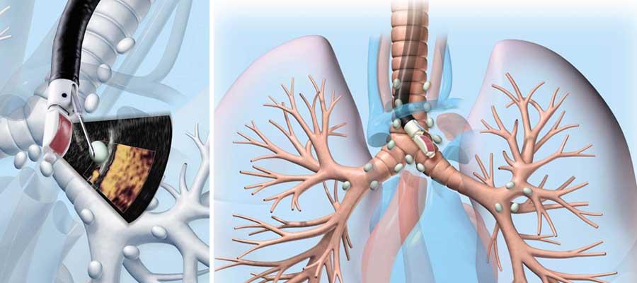 In einem Arbeitsschritt können die Lymphknoten zwischen den beiden Lungenflügeln im Ultraschall sichtbar gemacht und mit der dafür konzipierten Nadel punktiert werden, um so Gewebeproben zu gewinnen.